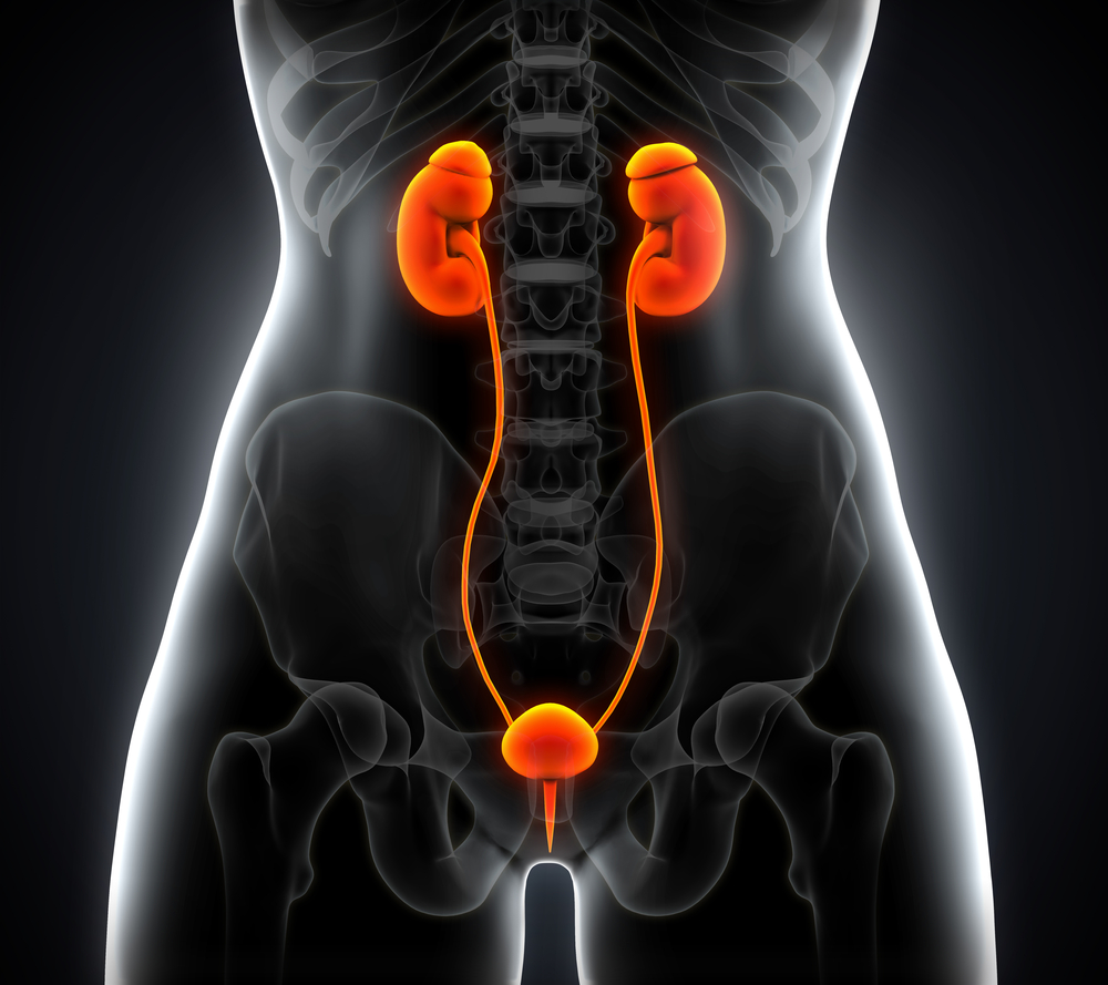 Patients With Endometriosis at Increased Risk for Developing Endometrial Cancer
