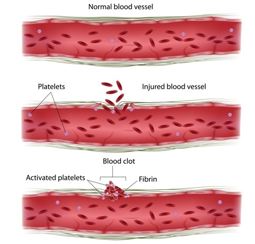 In Endometriosis, Blood Platelets May Work in Concert with Lesions to Promote Disease