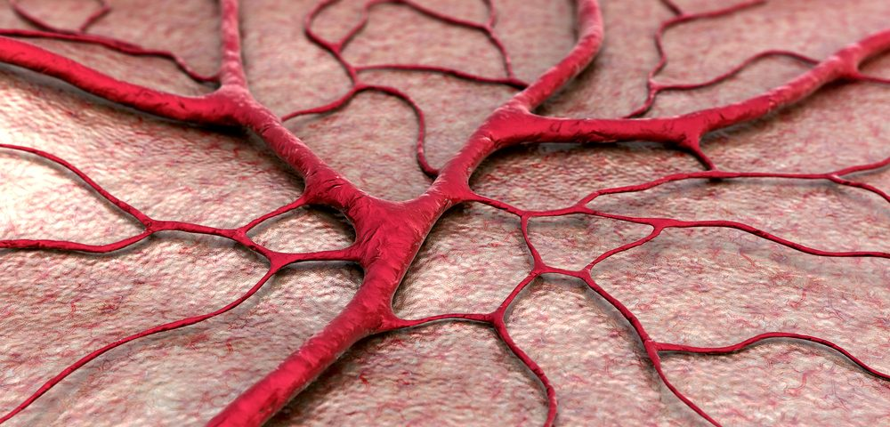 Reducing Blood Vessel Density May Help Treat Endometriosis Patients, Mouse Model Shows