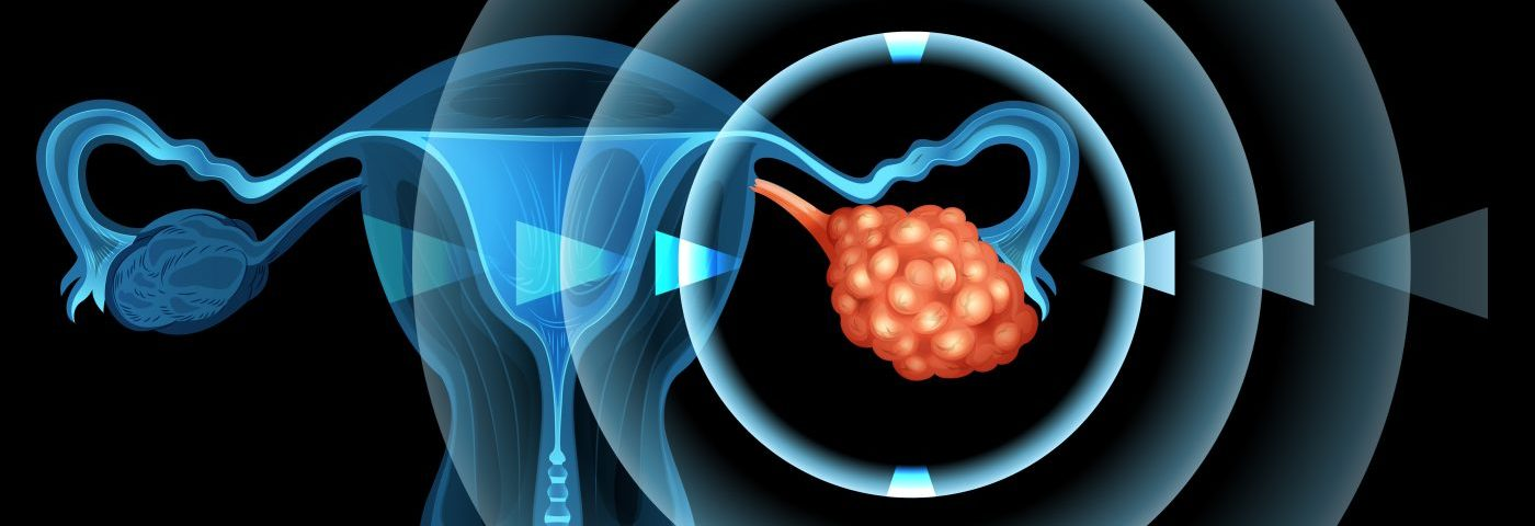 MRIs Can Help Distinguish Between Benign Endometriosis Lesions and Cancer, Study Shows